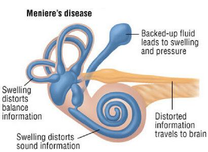 menieres-disease-3